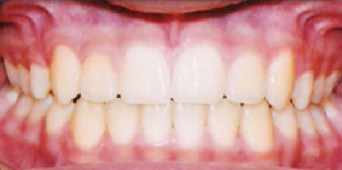 Straight teeth after dental procedures at A Great Smile Arizona