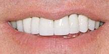Photo of mouth after crown.