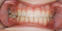 Photo of mouth after orthodontics.