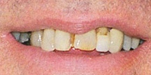 Photo of mouth before crown.