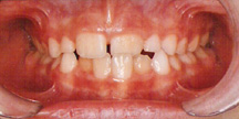 Photo of mouth before orthodontics.